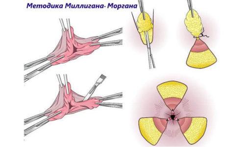 Виды операций по удалению геморроя: геморроидэктомия, геморроидопексия, лигирование, лазерная коагуляция, склеротерапия и пр.