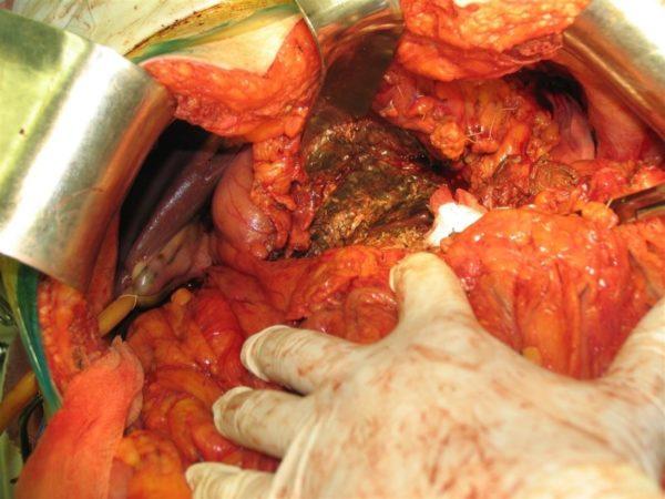 Высокая эхогенность поджелудочной железы