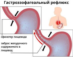 Аксиальнаягрыжа пищеводногоотверстиядиафрагмы (хиатальная): признаки, степени и лечение