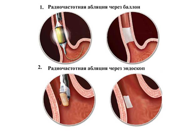Аритмия у женщин: причины возникновения и методы лечения