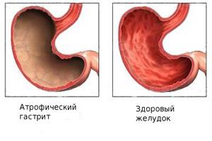 Атрофический гастрит: симптомы и лечение, прогноз