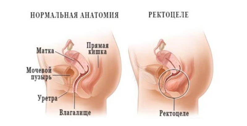 Болезни прямой кишки и заднего прохода: симптомы и лечение