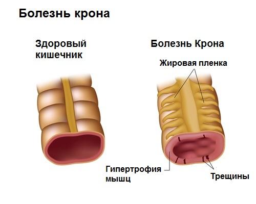 Болит кишечник внизу живота с лева и права: что делать, возможные причины и способы лечения