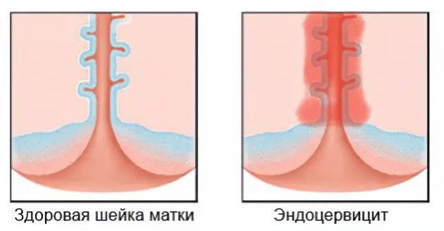Цервикальный фактор бесплодия