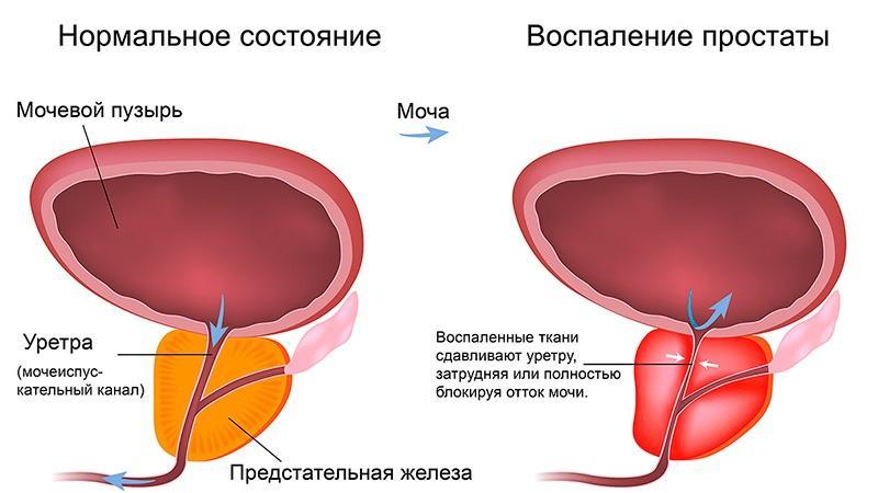 Чем отличаются простатит и аденома простаты