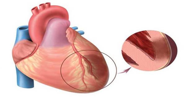 Что делать, если артериальное давление 100 на 100?