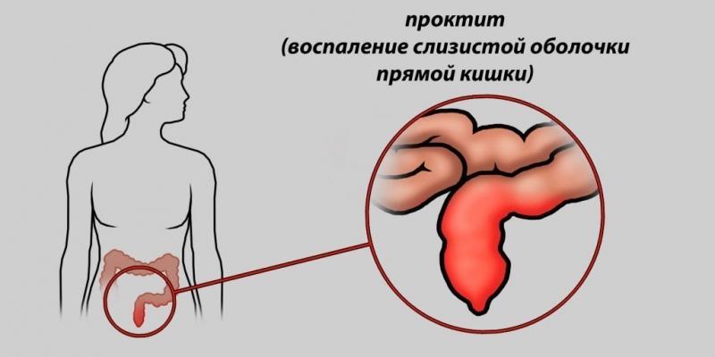 Что делать если у беременной женщины идёт кровь при дефекации