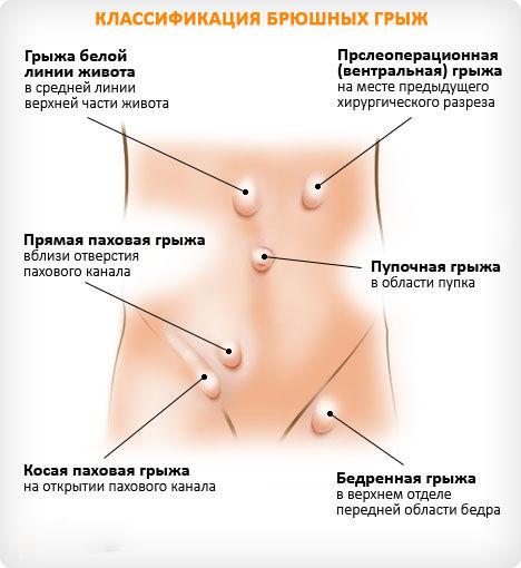 Что делать при грыжи брюшной полости?