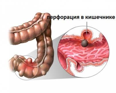 Что делать при перфорации кишечника?