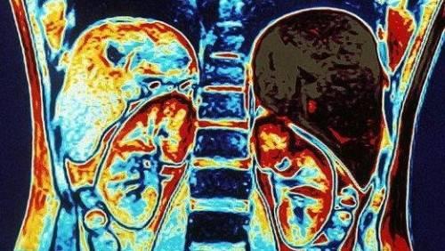 Что показывает КТ органов брюшной полости