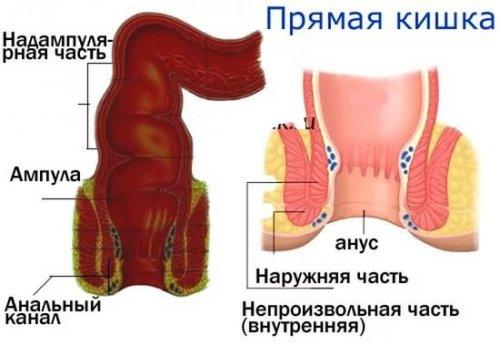 Что представляет собой атрезия ануса и прямой кишки?