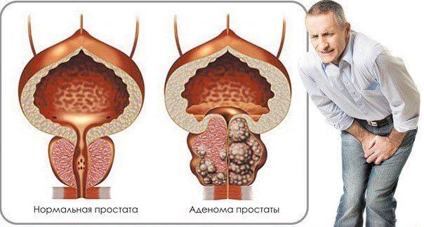 Год болит простатит простатит лечение по гуськову