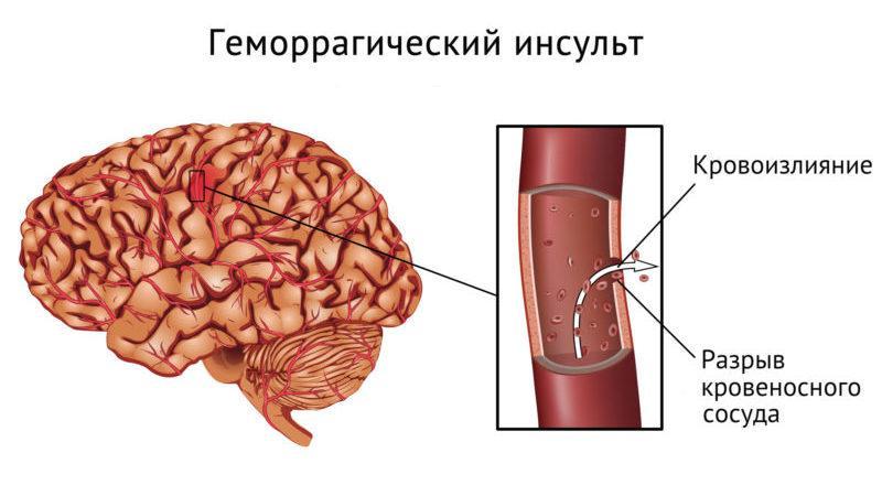 Что такое геморроидальный инсульт и его последствия