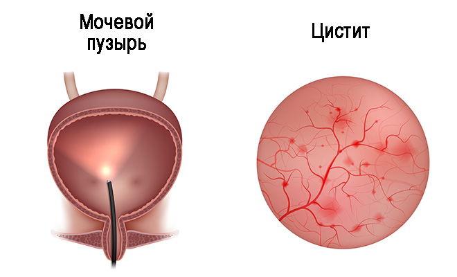 Что такое гормональный цистит