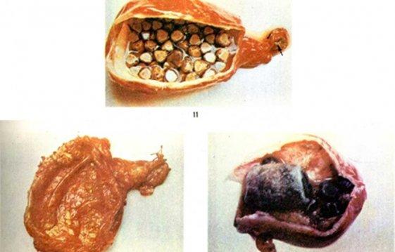 Что такое калькулезный холецистит и какие осложнения существуют