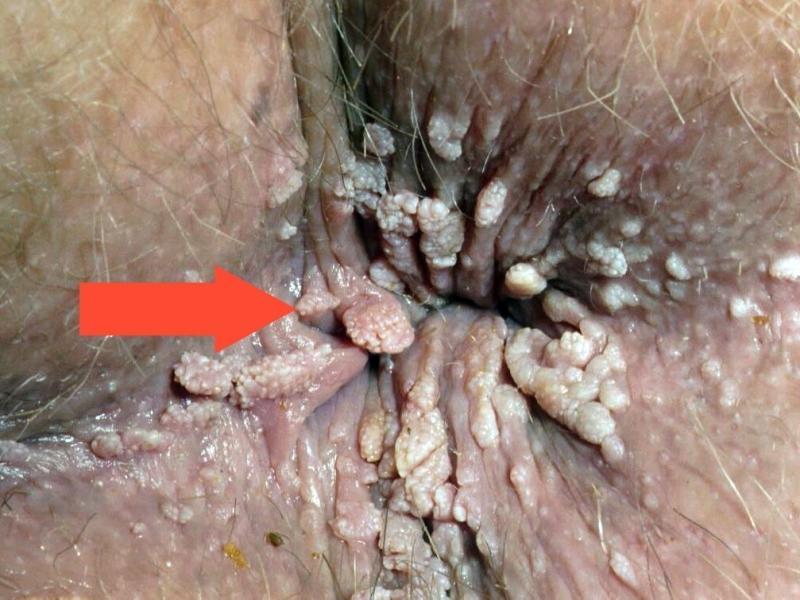Что такое папиллома и как она лечится