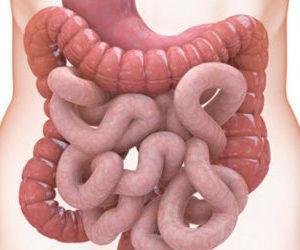 Что такое перфорация стенок кишечника