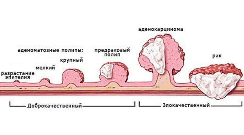 Что такое полип в прямой кишке: симптомы и лечение