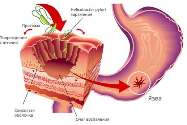 Что такое прободная язва желудка