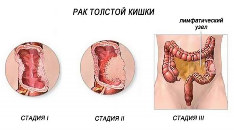 Что такое рак толстой кишки: его причины и симптомы