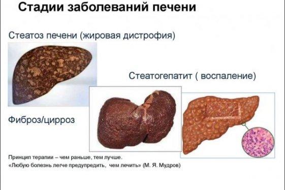 Что такое стеатоз поджелудочной железы
