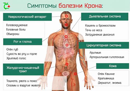 Диагностика болезни Крона: как выявить на ранних этапах