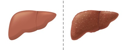 Диагностика и способы лечения холангита