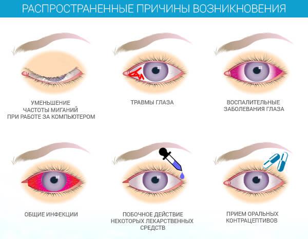 Эффективные капли для восстановления работы глаз: список лучших