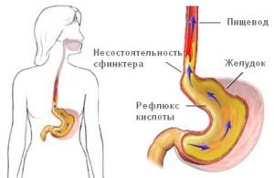 Эрозивный гастродуоденит: схема лечения, симптомы, диета и правильное питание