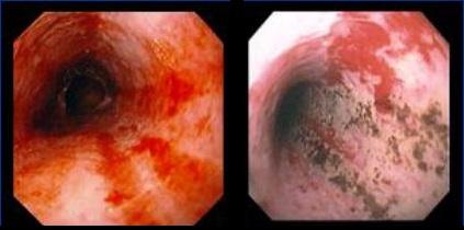 Фибринозный эзофагит: что это такое, причины и лечение