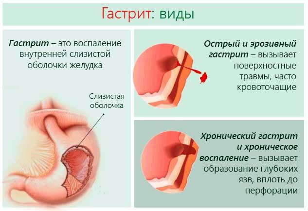 Гастрит при беременности на ранних и поздних сроках: лечение