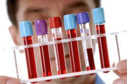 Геморрагический гастрит: что это, виды, диета и лечение