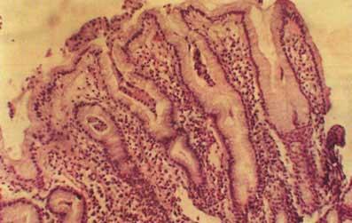 Гиперплазия слизистой оболочки желудка: что это такое, виды, методы лечения