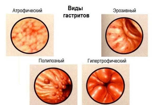 Гипертрофический гастрит: что это, лечение, диета и прогноз