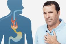 Хронический эзофагит: что это такое, симптомы и лечение