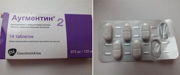 Хронический холецистит: как лечить?