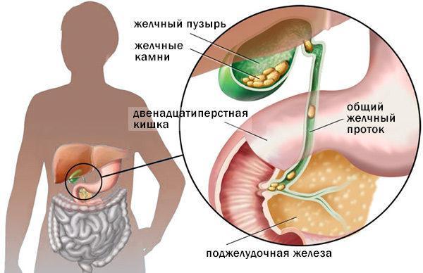 Хронический калькулезный холецистит: симптомы и лечение