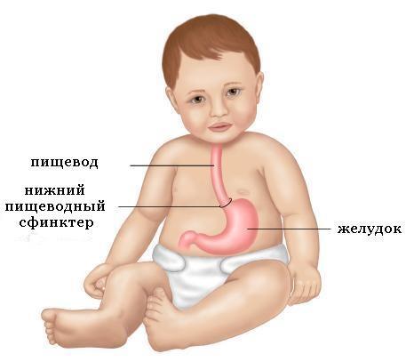 Изжога после еды у взрослых и детей: причины и лечение