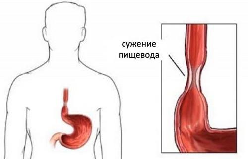 Изжога в горле: причины и способы устранения