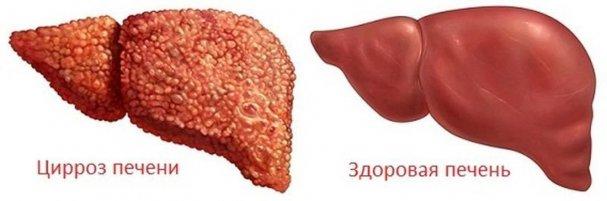 Как диагностировать цирроз печени и можно ли его выличить