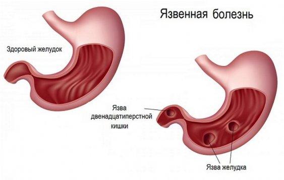 Как лечить острую язву желудка
