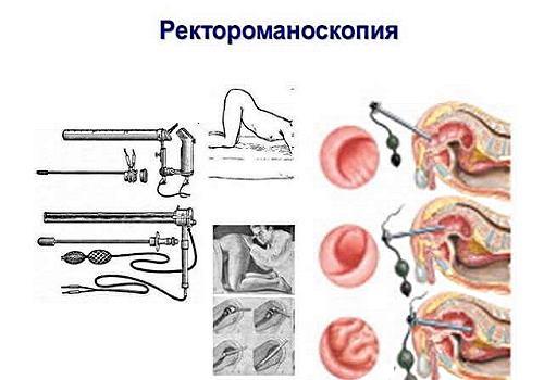 Как остановить кровотечение при анальной трещине: советы врачей