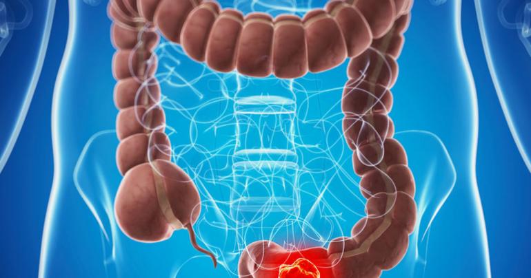 Как отличить геморрой от рака? 7 характерных отличительных признаков