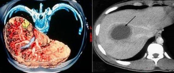 Как подготовиться к магнитно-резонансной томографии печени