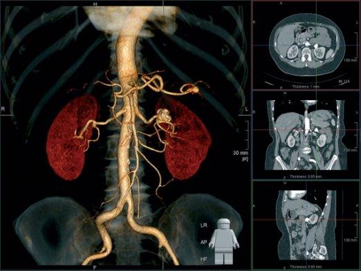 Как подготовиться к МРТ брюшной полости с контрастом?