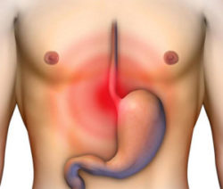 Как понизить кислотность желудка: народными средствами в домашних условиях