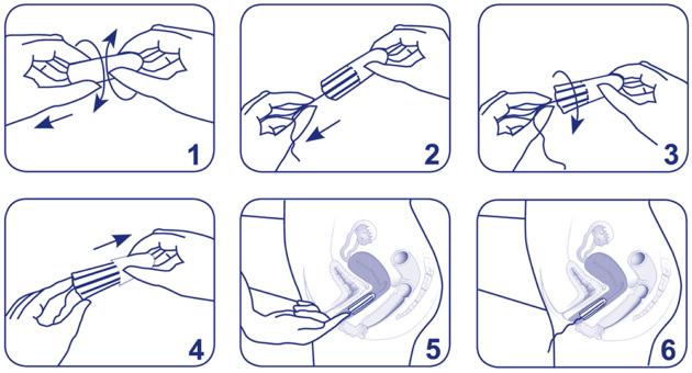 Как правильно ставить тампон при месячных
