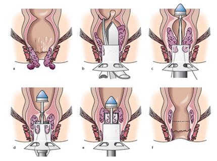 Как проводится геморроидэктомия по Миллигану Моргану