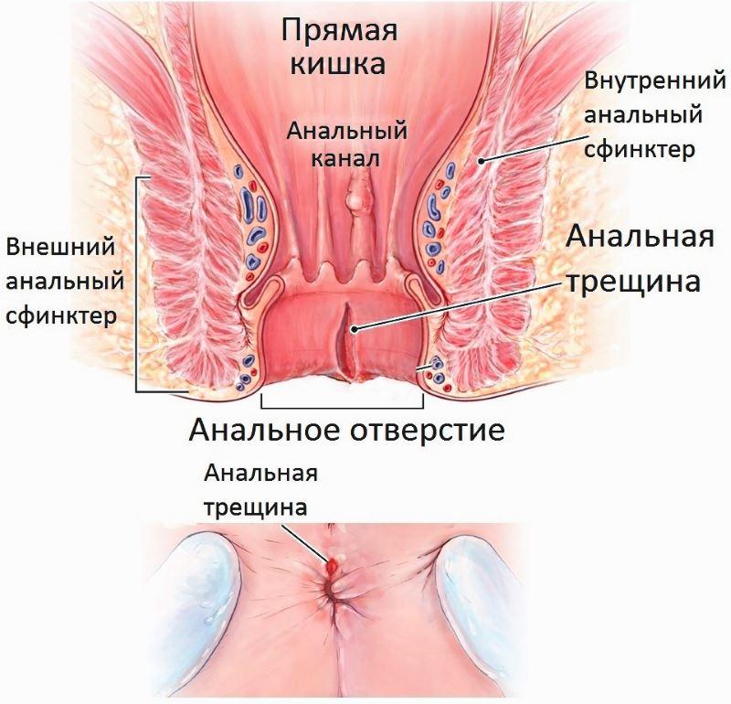 Как проводится лечение анальной трещины у взрослых?
