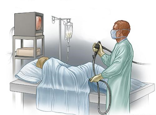 Как пройти безопасно колоноскопию кишечника и больно ли это?